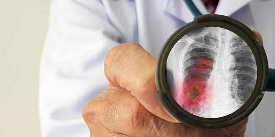 «Καμπανάκι» για υδροξυχλωροκίνη: Αυξημένος ο κίνδυνος θανάτου